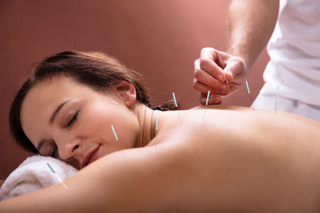 Close-up Of Relaxed Young Woman Going Through Acupuncture Treatment In Spa