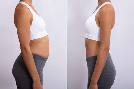 Before And After Concept Showing Fat To Slim Woman 版權商用圖片