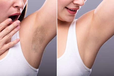 Vorher und Nachher Konzept der Haarentfernung unter den Armen der Frau auf grauem Hintergrund