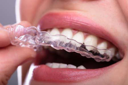 Close-up of a Woman's Hand Putting aligneur transparent dans les dents