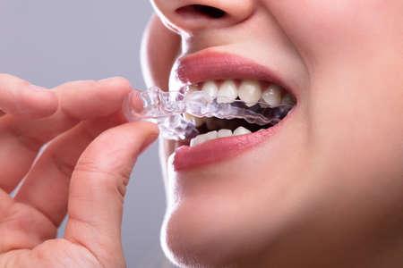 Nahaufnahme der Hand einer Frau, die transparenten Aligner in die Zähne steckt