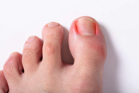 An Elevated View Of Sore Toe Nail On Floor Stock Photo