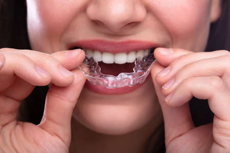 Close-up Of A Woman's Hand Putting Transparent Aligner In Teeth 写真素材 - 121520011