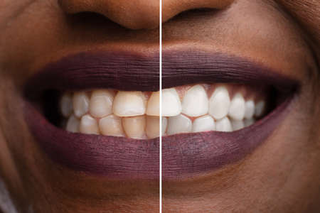 Close-up Of A Smiling Womans Teeth Before And After Whitening