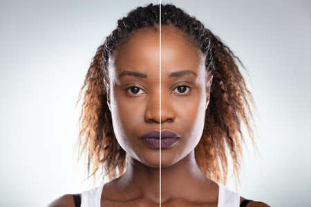 Close-up Of A Young Woman's Face Before And After Cosmetic Procedure