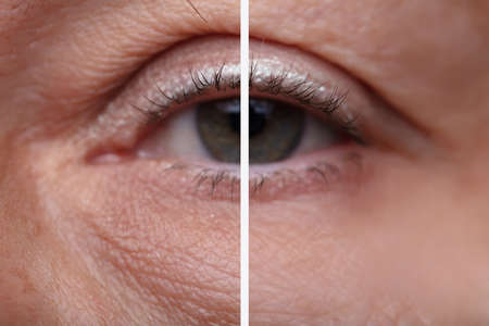 Close-up Of Womans Eye Bags Before And After The Cosmetic Treatment Banco de Imagens