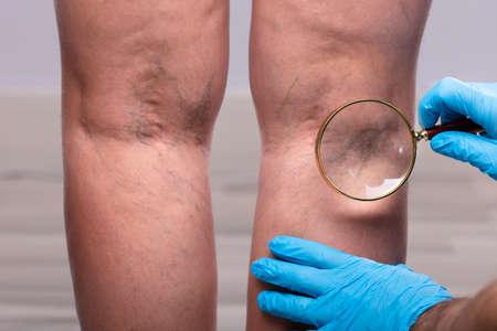 Nahaufnahme eines Chirurgen mit blauen chirurgischen Handschuhen, der die Krampfadern durch die Lupe untersucht