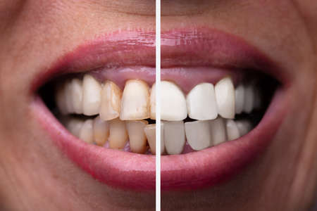 Female Teeth Between Before And After Dental Treatment