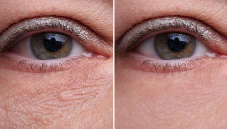 Close-up Of Woman's Eye Bags Before And After The Cosmetic Treatment