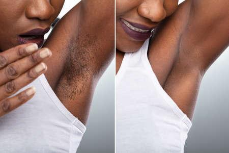 Antes y después del concepto de depilación de las axilas de la mujer sobre fondo gris Foto de archivo