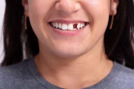 Cerrar foto de mujer joven con diente faltante