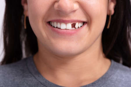 Close Up Photo Of Young Woman With Missing Tooth Foto de archivo