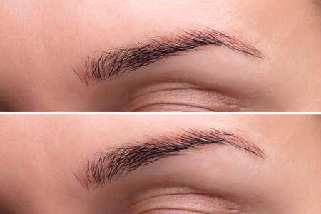 Antes y después del procedimiento endoscópico de levantamiento de cejas
