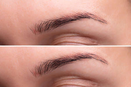 Before And After Endoscopic Eyebrow Lifting Procedure