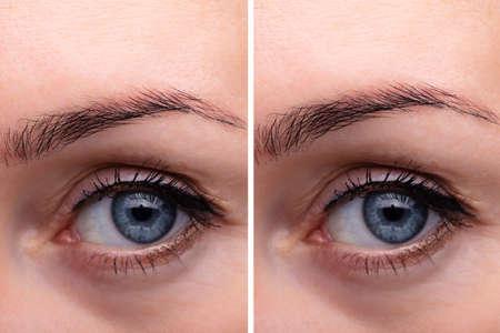 Antes y después del procedimiento endoscópico de levantamiento de cejas Foto de archivo