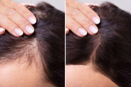 Mujer antes y después del tratamiento de la caída del cabello Foto de archivo