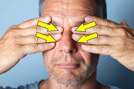 Mature Man Massaging Eyes. Doing Eye Exercises to Improve Eyesight