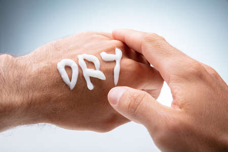 Close-up Of Dry Text Made With Lotion On Human Hand On White Background Stock fotó