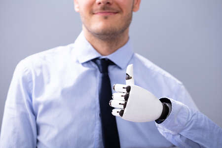 Businessperson With Prosthetic Limb Showing Thumb Up. Artificial Limb Foto de archivo - 129802554