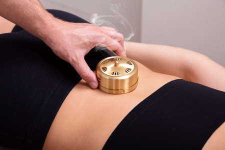 Overhead View Of A Doctor's Hand Placing The Metallic Moxibustion Can On Female Patient's Back