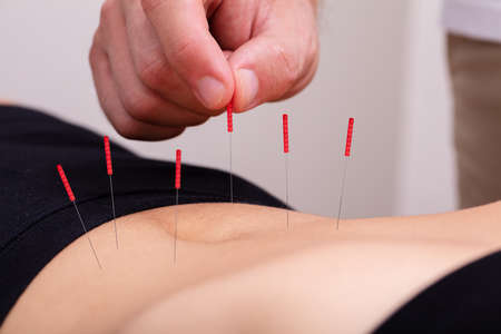 Close-up Of Doctor's Hand Perform Medical Professional Acupuncture Treatment In Beauty Spa On Woman's Body