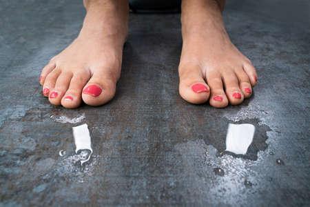 Woman With Sweaty Feet Standing On Floor