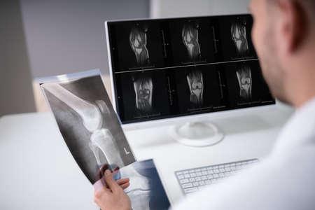 Médecin de sexe masculin mûr examinant la radiographie du genou en clinique