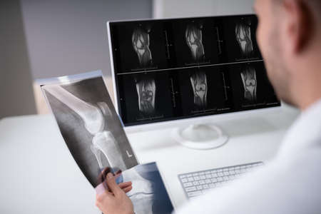Mature Male Doctor Examining Knee X-ray In Clinic
