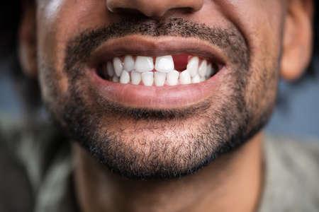 Cerrar foto de joven con diente faltante