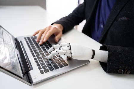 Man With Prosthetic Hand Working On Laptop. Artificial Limb