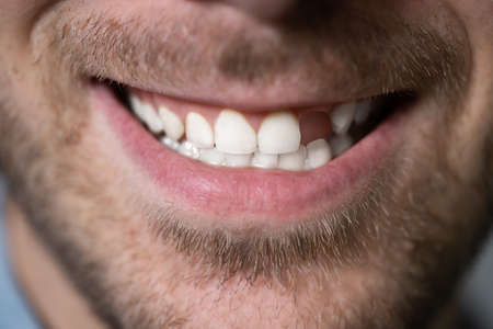 Close Up Photo Of Young Man With Missing Tooth
