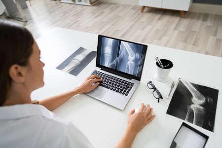 Doctor mirando rayos X del pie en un portátil con estetoscopio