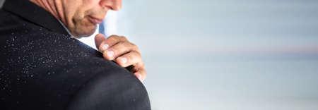 Close-up Of A Businessman's Hand Brushing Off Fallen Dandruff On Shoulder