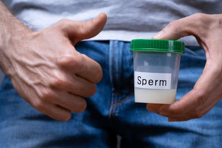 Sperm Donor Holding Container And Making Thumbs Up Stock Photo