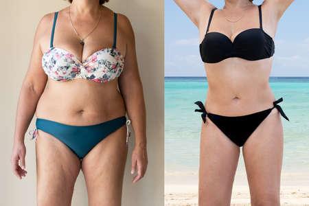 Mujer madura antes y después de pie gordo a delgado concepto