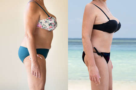 Mature Woman Before And After From Fat To Slim Concept Standing