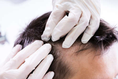 Close-up Of A Dermatologist's Hand Checking Patient's Hair