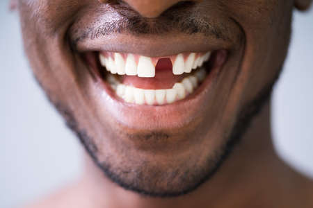 Close Up Photo Of Young Man With Missing Tooth Stock Photo