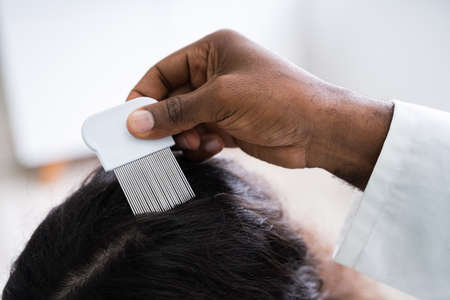 Close-up Of Person Hand Using Lice Comb On Patient's Hair