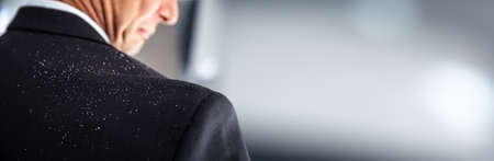 Fallen Dandruff On Man Suit. Businessperson Shoulder