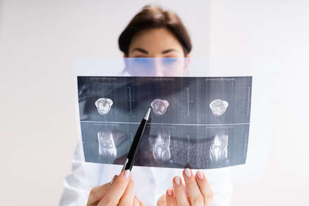 Surgeon Doctor Holding Xray Bone Magnetic Scan