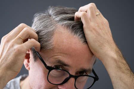 Balding Man Losing Hair. Checking Scalp Hair Loss Stock Photo