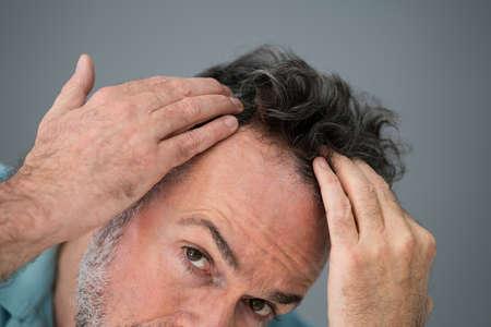 Man Checking His Hair Loss And Dandruff