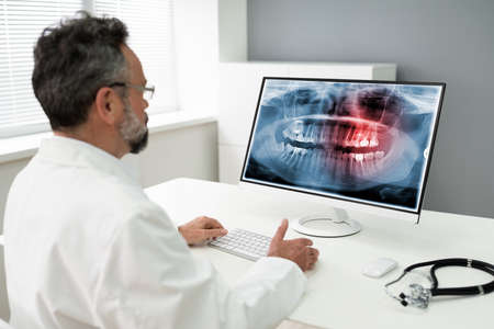 Mature Male Dentist Looking At Teeth X-ray On Computer In Clinic