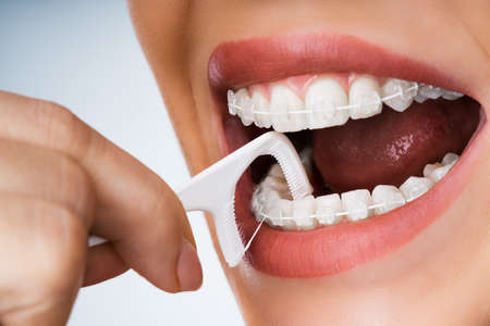 Female Cleaning Dental Brackets In Mouth Using Floss Stick Banque d'images