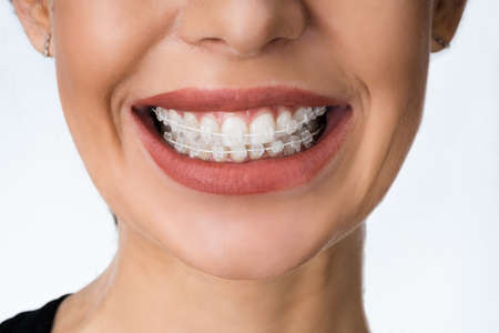 Female Mouth With Metal White Dental Braces Or Brackets Stock Photo