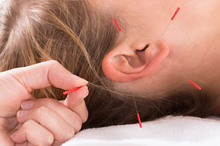 Closeup of hand performing acupuncture therapy on auricle at salon