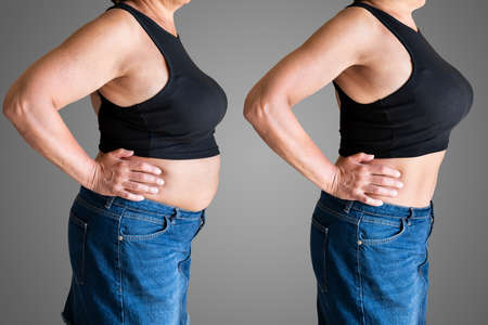 Before And After Weight Loss Liposuction Surgery