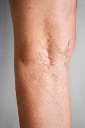 Leg Vein Varicose Disease And Pain. Blood Pressure Problem