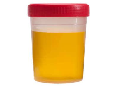 plastic jar with urine tests Stok Fotoğraf